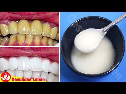 wie-man-zähne-zu-hause-aufhellt---zähne-in-2-minuten-aufhellen-und-natürliche-weiße-zähne-bekommen