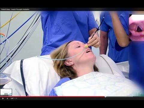 Patient Video - Awake Fibreoptic Intubation