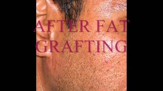 DEPRESSED SCARS / PIMPLE SCARS / FAT GRAFTING / FILLERS Thumbnail