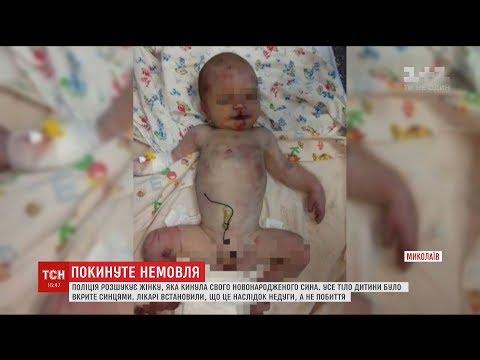 Поліція розшукує матір інфікованого немовляти, яке знайшли під пологовим будинком