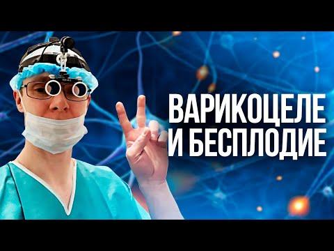 Варикоцеле и бесплодие. Проблемы с зачатием. Врач уролог-андролог. Москва