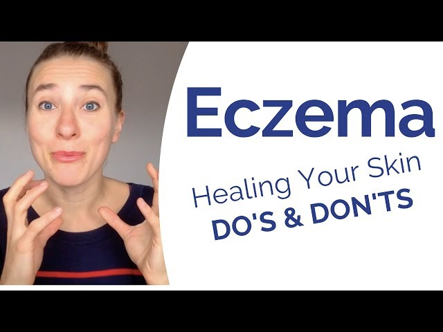 Eczema - What Really Causes It & Most Powerful Do's & Don't to Start Healing Your Skin Now