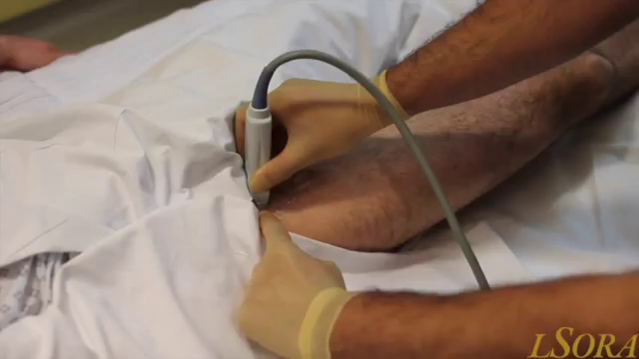 femoral nerve block youtube – applecool, Muscles