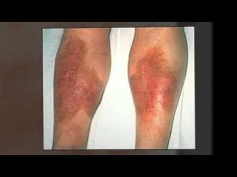 Skin Rashes On The Legs -- Let Us Find The Cure