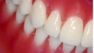 видео Оголения шейки зуба что это, причины и лечение