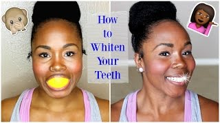 How to Whiten Teeth At Home FAST || BEST Whitening Kit & Home Remedies