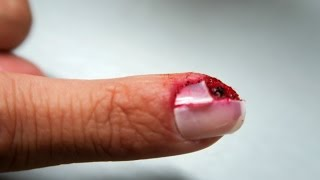 Ripped Off Fingernail Prank - Extra Footage