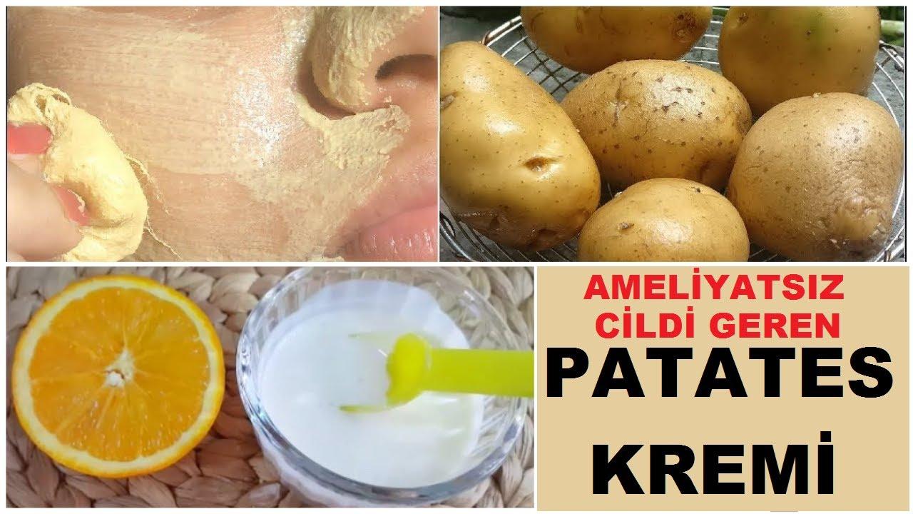 60 Yaşında Ama Bu Krem ile 40 Görünüyor Kırışık Karşıtı Leke Giderici Doğal Patates Kremi