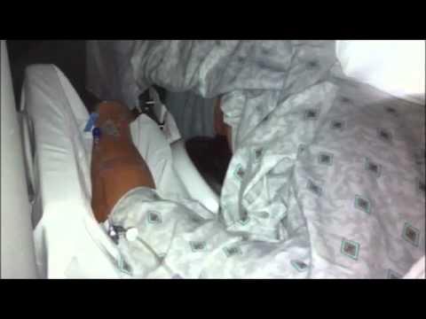 ESWL Procedure - YouTube