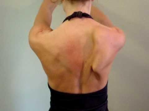 Damaged long thoracic - winging scapula - YouTube