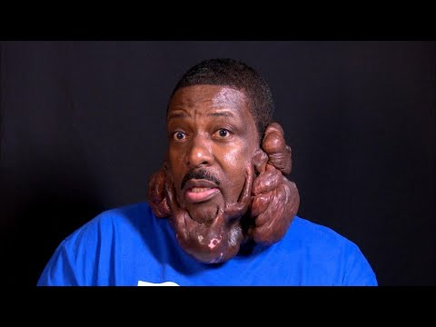 The Most Severe Keloids The Doctors Have...