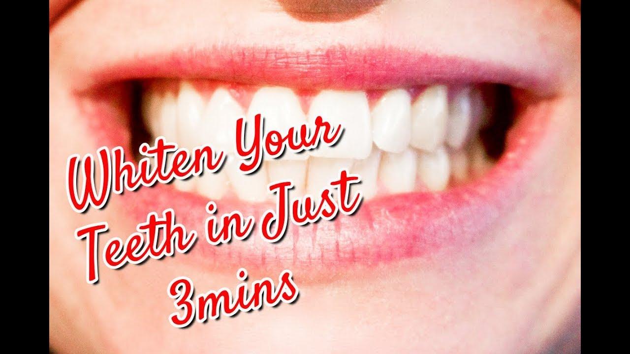 How To Whiten Teeth With Baking Soda Youtube