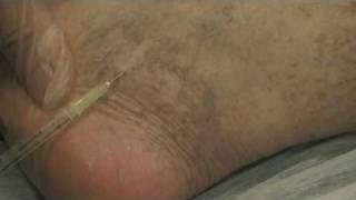 Sklerosierungstherapie von Krampfadern & Besenreisern, Innsbruck-Tirol(, 2010-04-05T22:44:42.000Z)