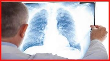 흉막염의 증상, 원인 및 치료