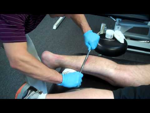 Graston Technique - Foot & Plantar Fasciitis