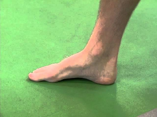How to Prevent and Treat Foot Arch Pain, According to