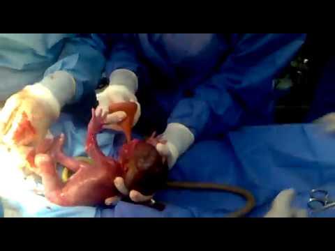 Semana 27 de embarazo gemelar
