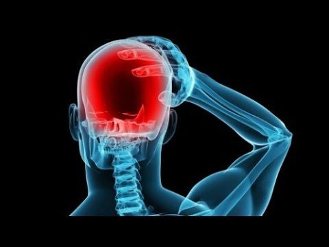 Điều Trị Bệnh Đau Nửa Đầu Migraine