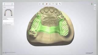 REMOVABLE PARTIAL DENTURE | How it's designed - Digital Dentistry