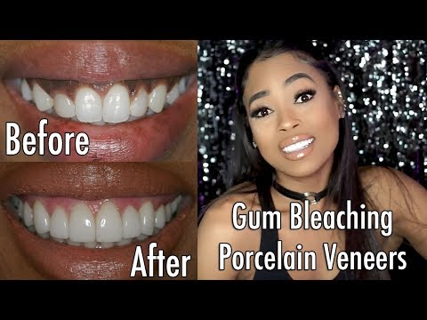 Stunning Porcelain Veneers and Gum Bleaching at Los Angeles' Best Dentist - Southland Dental Care!