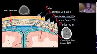 video ini berisi mengani penjelasan perbedaan antara stroke iskemik dan stroke hemoraging. Stroke is.