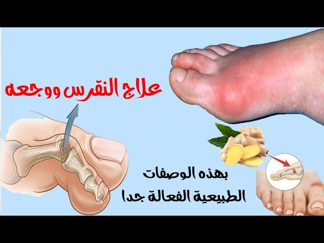٩ طرق لعلاج النقرس ونوبات الألم الناتجة عنه احرص على اغتنامها Youtube