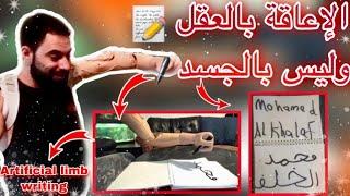 تفاجئت بطريقة لكتابة اسمك بالطرف الذكي الالكتروني شاهد الأمير كيف يكتب … Artificial limb writing