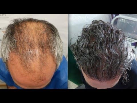 6202 Grafts. Hair Transplant by FUE Technique. Advanced alopecia. Injertocapilar.com. 883/2013