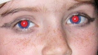 photoshop cs6 remove red eye tool
