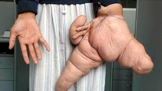 Repeat youtube video World's BIGGEST Human Body Parts - HD