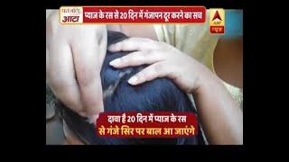 वायरल सच: प्याज के रस से 20 दिन में गंजापन दूर करने का सच | ABP News Hindi