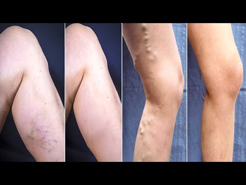 Get Rid of Spider Veins! 3-Day Solution! How Doctors Get Rid of Spider Veins! get rid of spider vei