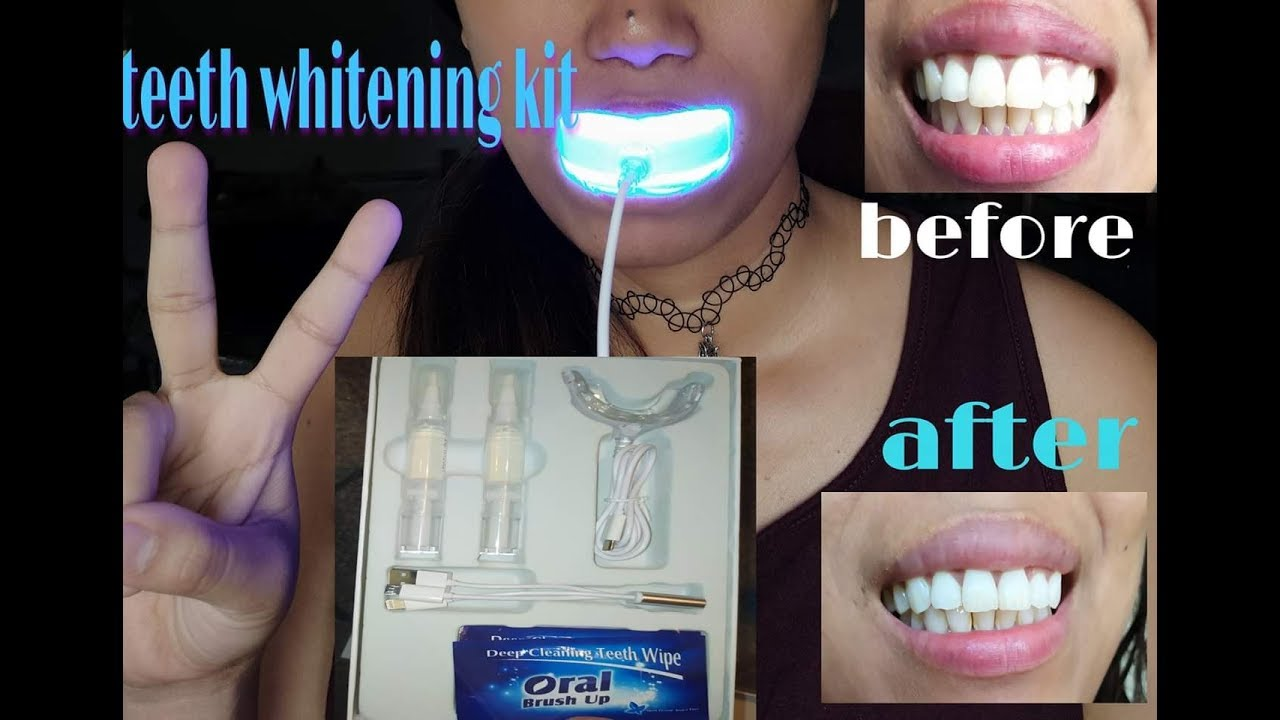 Amazon S Teeth Whitening Kit Step By Step Guide Results Youtube
