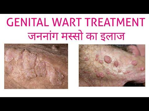 GENITAL WARTS TREATMENT (जननांग मस्सो का इलाज)