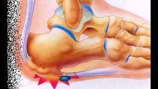 Шпоры Лечение народными средствами -1