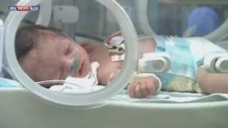 النظام المناعي للجنين يتأثر بوزن الأم