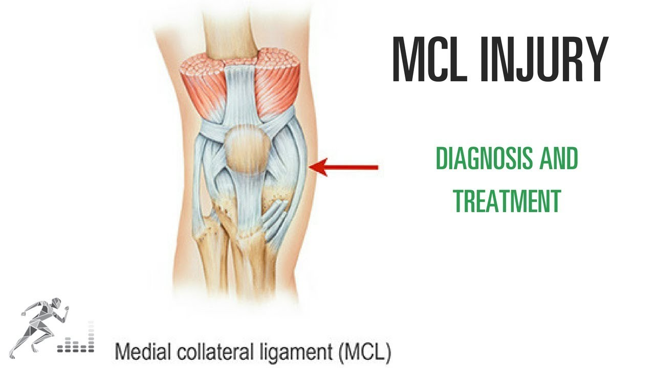 Mcl Tear Of The Knee Injury Diagnosis Treatment Youtube