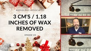 3CM/1.18 INCHES OF EAR WAX REMOVED - EP123