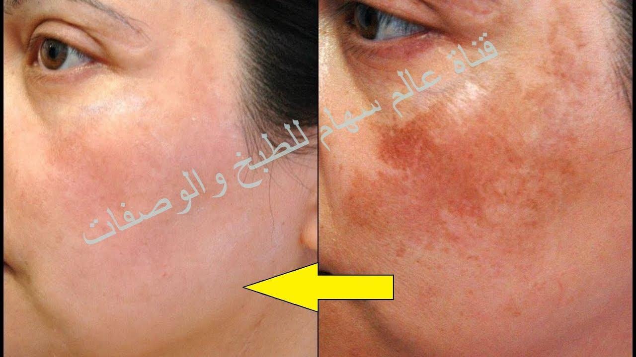 خلطة ازالة الكلف من الوجه وللتخص من تصبغات البشرة خلطة رااائعة نتيجتها تظهر بعد يومين فقط علاج الكلف Youtube