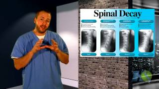 Spinal Decay | Chiropractor Thief River Falls MN