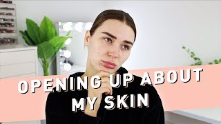 Opening Up About My Skin + Skincare Routine