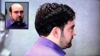 Hair Loss Treatment For Men In The UK