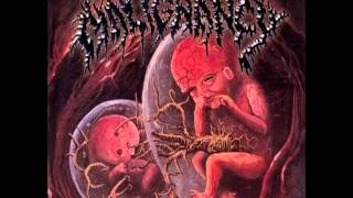 Malignancy - Intrauterine Cannibalism (1999) [Full Album] United Guttural Records