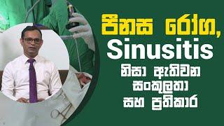 පීනස රෝග, Sinusitis නිසා ඇතිවන සංකුලතා සහ ප්රතිකාර | Piyum Vila | 08 - 04 - 2021 | SiyathaTV Thumbnail