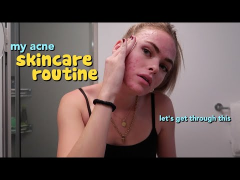 my skincare routine for acne :p (vlogmas episode 3)
