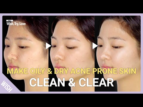 5 Essentials For Oily, Dry Acne Prone Skin! How To Get Clear Skin At Home | Wish, Try, Love
