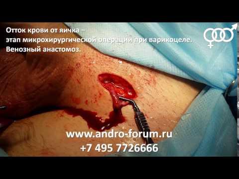 Правостороннее варикоцеле: развитие процесса, симптомы