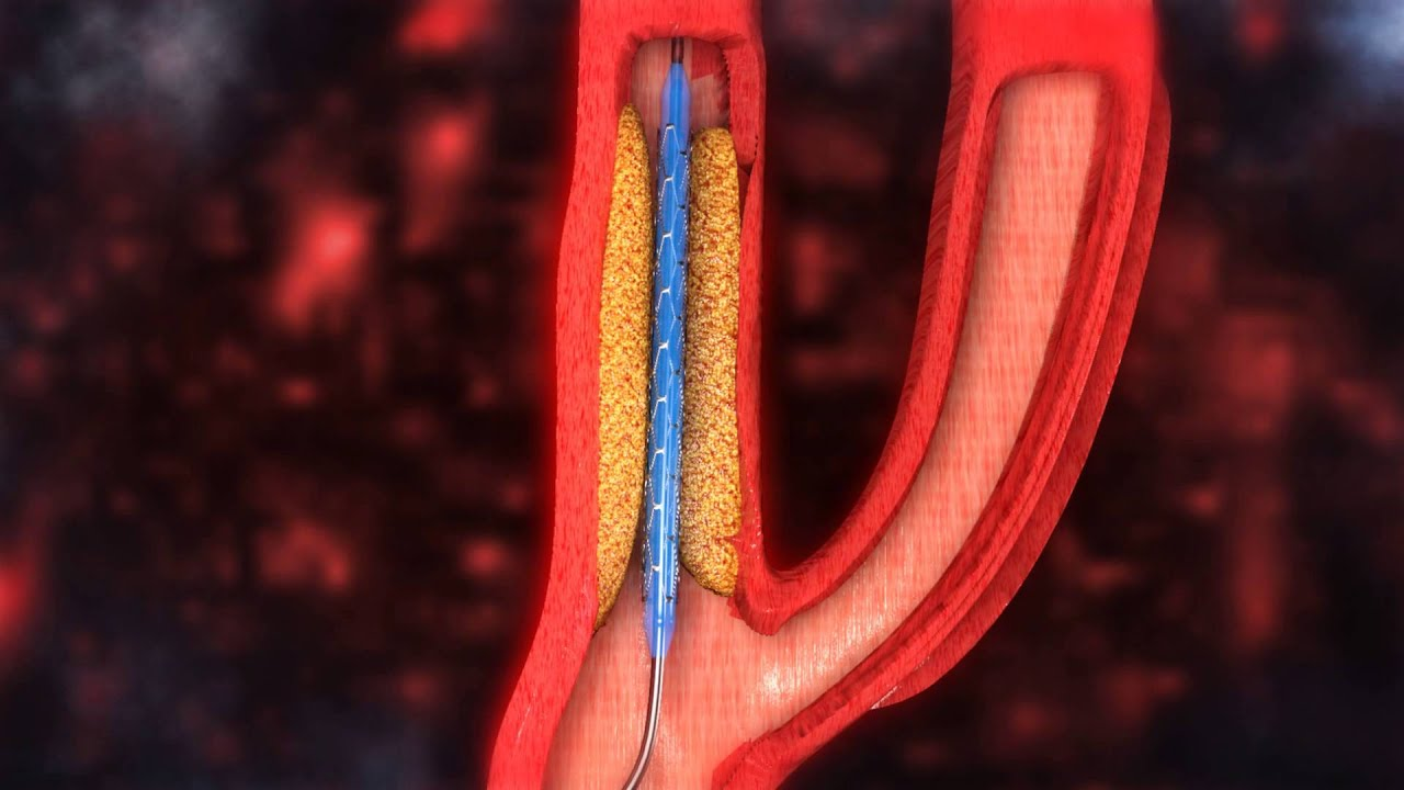 Carotid Artery Stenting Video