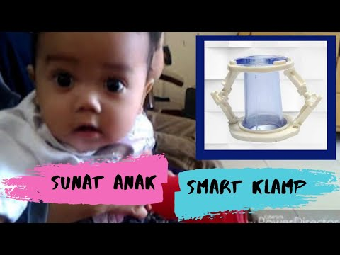 SUNAT BAYI - METODE SMART CLAMP | RECOMMENDED