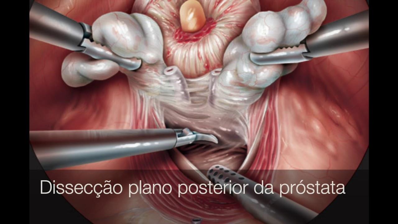 cancer de prostata robotica